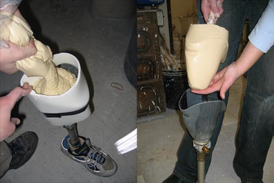 In prosthetic medicine, the sockets of prosthetic limbs sometimes wear out and need replacement. Alginate is commonly used in this process. Accu-Cast developed our 370-SD formula just for this purpose. It is currently used by thousands of prosthetic labs throughout North America.